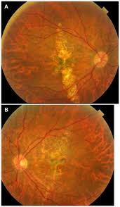 Figure 4 Fundus Photographs Of The Right A And Left B Eyes 27 Months After First Examination Notes There Is Further Enlargement