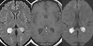 Choroid Plexus Cyst MRI