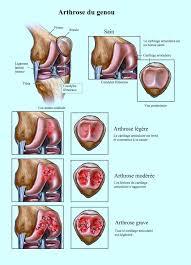 douleur au genou arrière interne ou latéral