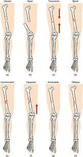 Fracture Orbital Floor Icd 10 by Bone Fracture Wikipedia