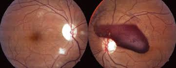 Fundus Photo Of Right Eye Showing Resolving Purtschers Retinopathy With Traumatic Optic Neuropathy Left Valsalva