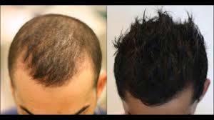 Bigs Pumpkin Seeds Nutrition by Pumpkin Seeds Hair Loss Dht Dht Diet Hair Loss Youtube