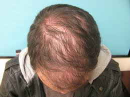 Propecia Shedding After 1 Year by Thinning Bald Gaf Why Are You Not Choosing To Do A Hair