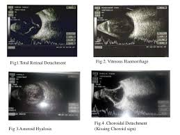 Study Of B Scan Ocular Ultrasound In Diagnosing Posterior Segment Pa