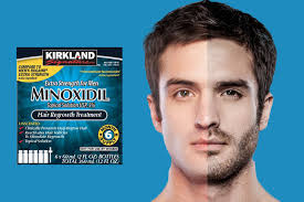 Rogaine Foam Shedding Phase by Rogaine For Beard Ultimate Guide To Grow A Beard If It U0027s Not In