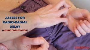 Cyanotic Nail Beds by Peripheral Vascular Examination Osce Guide Geeky Medics