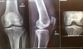 douleur interieur genou course a pied origine douleur au genou interne athletics73