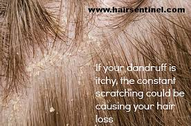 excessive hair shedding causes itchy scalp hair loss causes and cures