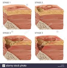 illustration of the 4 stages of a bedsore bedsores or pressure