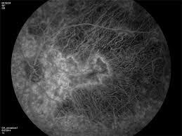 Diffuse Retinochoroidal Atrophy Most Likely Choroideremia