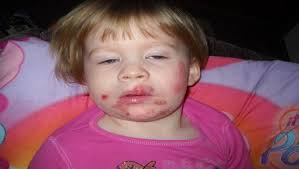7 Home reme s for impetigo in children and adults