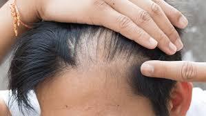 10 Cara Menumbuhkan Rambut Botak Bagian Depan Dengan Cepat