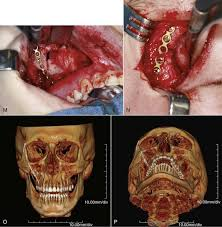 Orbital Floor Fracture Treatment by 16 Fractures Of The Zygomatic Complex And Arch Pocket Dentistry