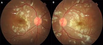 Purtscher Like Retinopathy As A First Manifestation Of Systemic