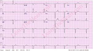 Atrial Fibrillation with Bradycardia ECG Example 3