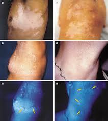 Wood Lamp Examination Diagnosis by Treatment Of
