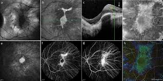 Multimodal Retinal Imaging In Choroideremia A Infra Red Confocal Scanning Laser Ophthalmoscopy