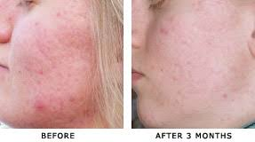 Infrared Lamp Therapy Side Effects by Infrared Dpl Device Rejuvenates Skin For Youthful Appearance