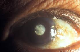 Christmas Tree Cataract Myotonic Dystrophy by Image Gallery Oil Drop Cataract