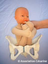 accouchement par le siege césarine siège et césarienne