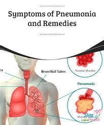 Best 25 Symptoms of pneumonia ideas on Pinterest