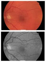 An Epiretinal Membrane Is A Film That Forms Over The Retina Learn About Symptoms And Causes Of Membranes As Well Treatments