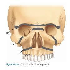 Fracture Orbital Floor Icd 10 by 99 Best Ent Images On Pinterest Bones Cavities And Ears