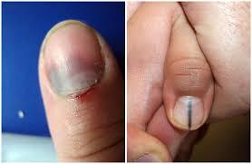 Nail Bed Melanoma by Subungual Hematoma Vs Melanoma U2013 Causes Symptoms Treatment
