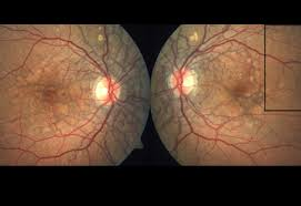 Fundus Photographs Reveal Bilateral Subretinal Dark Grey Concentric And Radial Lines Particularly Around The Optic Nerve Heads Maculae