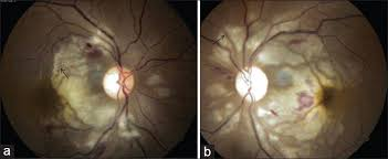 Figure 2 A And B Fundus Photographs Showing Purtscher Flecken Arrow Intraretinal Hemorrhages Involving The Posterior Poles Of Both Eyes