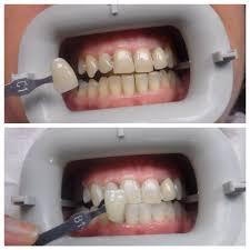 Dental Front Desk Jobs In Maryland by Smile Design Centre Home Facebook