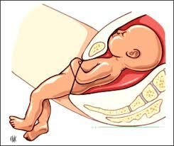accouchement par le siege première partie considerations theoriques sur l accouchement en