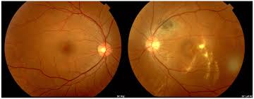 A Case Of Full Thickness Macular Hole Secondary To Old Traumatic