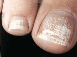 White Spots On Nail Beds by 15 White Spots On Nail Beds Brainbytes Skin Structure