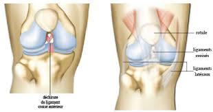 ligamentoplastie du genou chirurgie genou douleur de genou