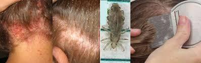 poux de tête poux de corps et morpions urgences