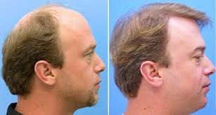 Minoxidil Shedding Phase Pictures by Hair Fall Is A Common Condition That Can Happen To Anyone It Can