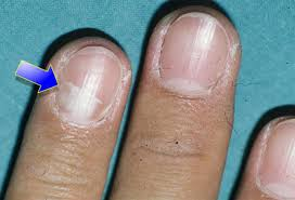 fingernail lines dark vertical how you can do it at home