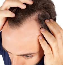 Minoxidil Shedding Phase Pictures by Hair Regrowth For Men And Hair Loss Options