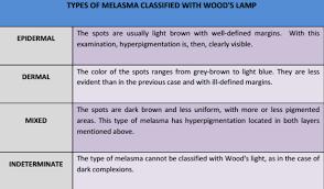 Woods Lamp Examination Images by Do You Know Your Melasma U2013 K5 Lipogel
