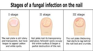 White Spots On Nail Beds by Black Toenail Fungus Causes Home Remedies Treatments And More