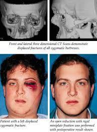 Orbital Floor Fracture Treatment by Zygomatic Fractures