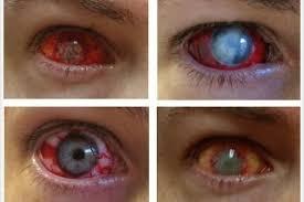 Prescription Contact Lenses Halloween Uk by Halloween Hazards Fancy Dress Contact Lenses