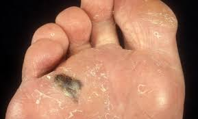 Nail Bed Melanoma by Was Bob Marley U0027s Cancer Preventable Care2 Healthy Living