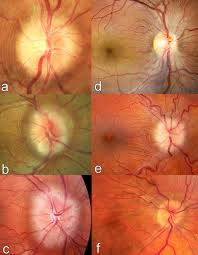 Fundus Photographs With Examples Of Peripapillary Wrinkles Retinal Folds And Choroidal In Patients