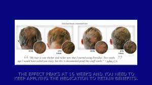 Propecia Shedding 2 Weeks by Hair Loss Treatment Best Hair Loss Treatment How To Stop Hair