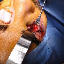 Orbital Floor Fracture Treatment by Orbital Fractures U2014 Lara Devgan Md Mph Female Plastic Surgeon