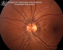 Vitreous Retina Angioid Streaks