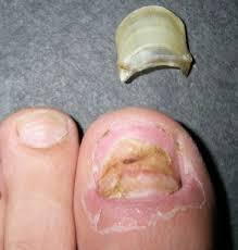 toenail falling off loss separation causes symptoms get rid