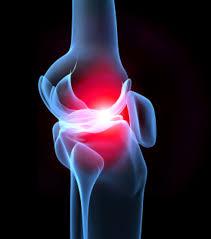 arthrose du genou symptômes et traitements pour atténuer les